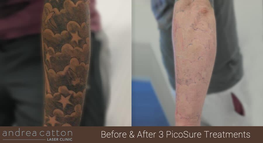 forearm tattoo before and after 3 picosure treatments