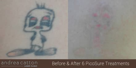 Picosure 174 Tattoo Removal Uk Andrea Catton Laser Clinic