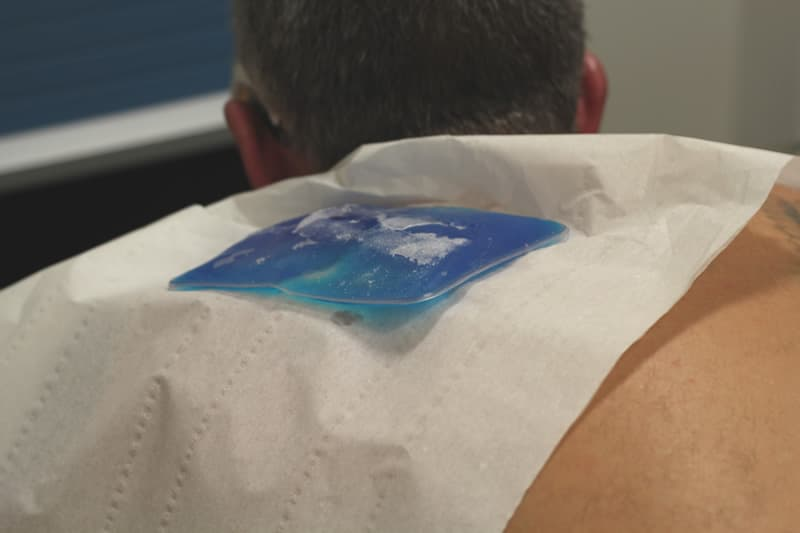 ice pack on tattoo after laser treatment