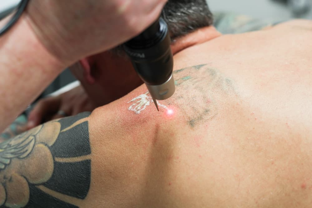 picosure laser treating tattoo on back