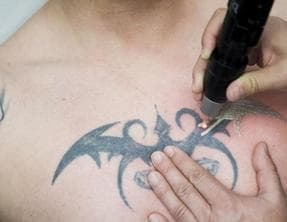 Laser Tattoo Removal before a Cover-Up Tattoo: Is it worth it ...