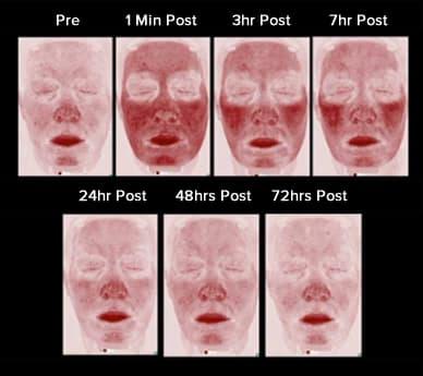 laser treatment risks