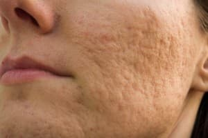 rolling acne scars on woman's cheek