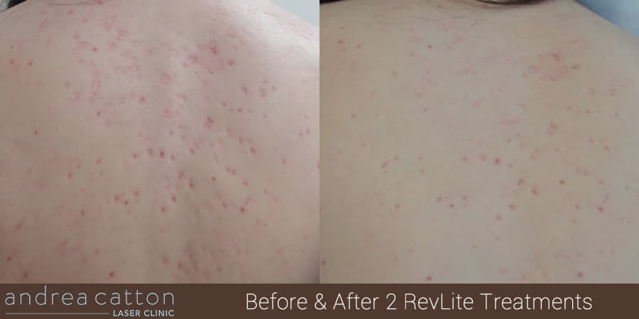 back acne scars revlite before and after 2 treatments
