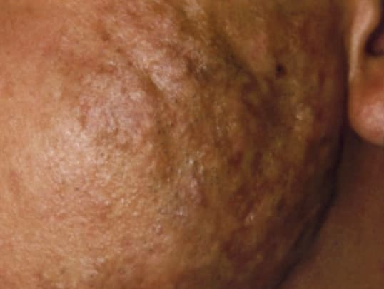 the different types of acne scars (with pictures) | andrea catton
