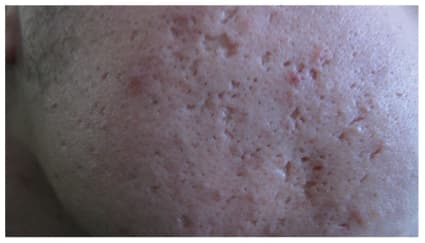 The Different Types Of Acne Scars With Pictures Andrea