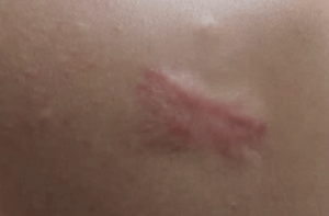 keloid acne scar