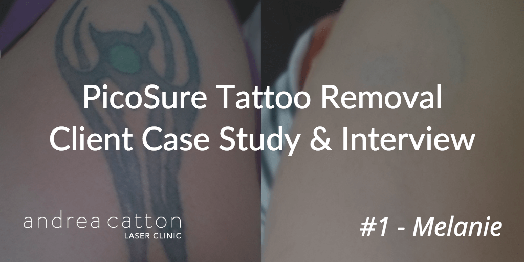 Picosure Tattoo Removal Client Case Study Amp Interview 1