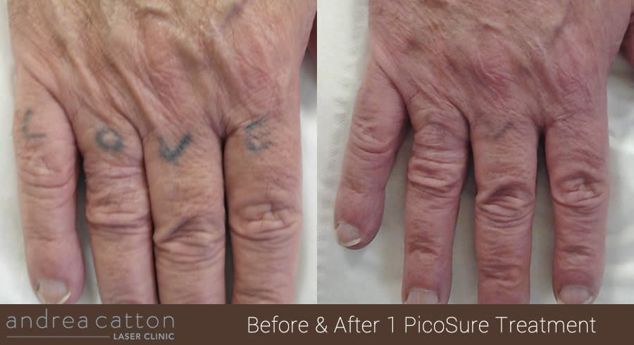 knuckle tattoo before and after 1 picosure treatment