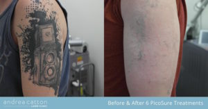 alex speaker arm before and after 6 picosure treatments