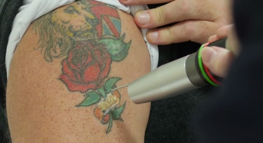 revlite laser in action on coloured tattoo