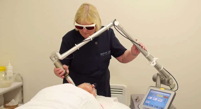 revlite laser hair removal on face