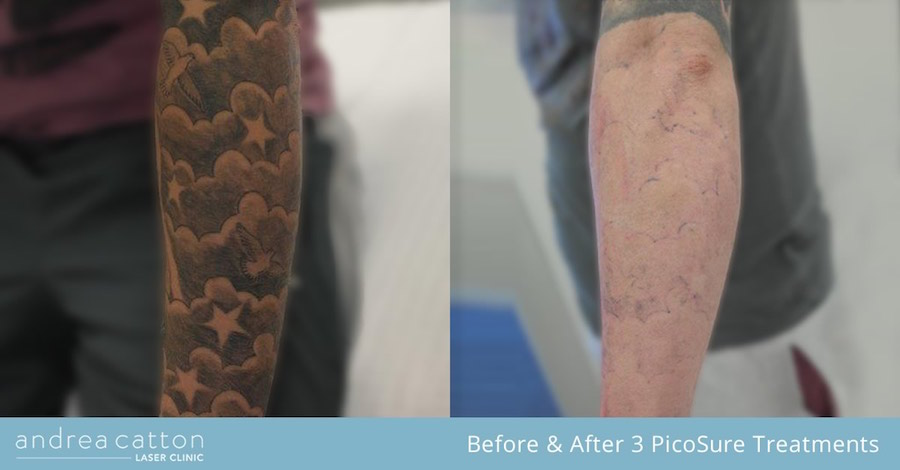 cloud forearm tattoo arm before and after 3 picosure treatments