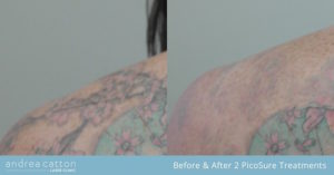 flower shoulder before and after two treatments