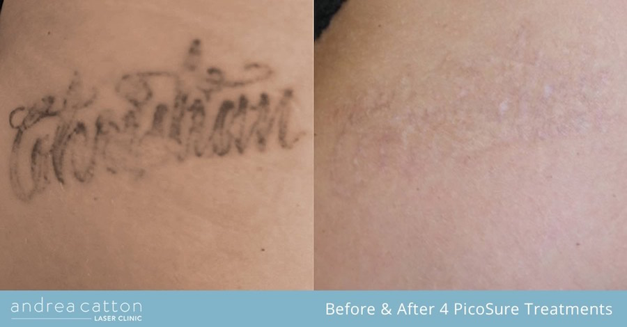 leg writing tattoo arm before and after 4 picosure treatments