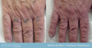 lettering hand before and after 1 picosure treatment