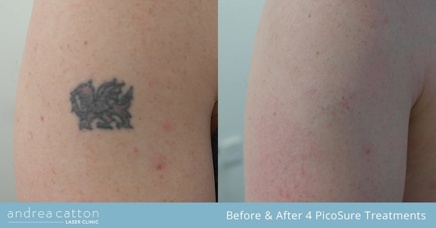 lion tattoo arm before and after 4 picosure treatments