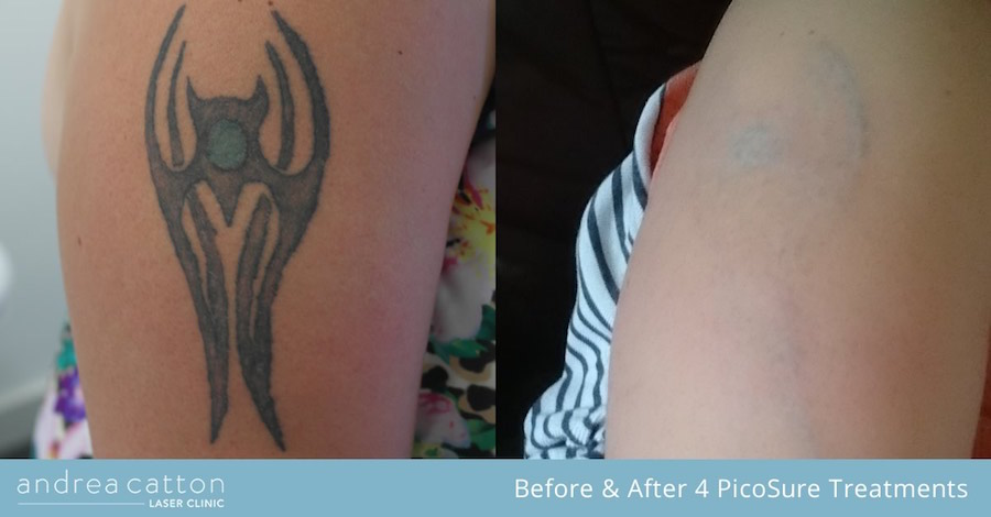 arm tattoo before and after 4 picosure treatments