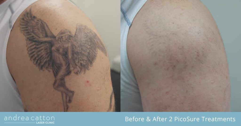 angel tattoo on shoulder before and after 2 picosure treatments