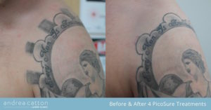 squares shoulder arm before and after 4 picosure treatments