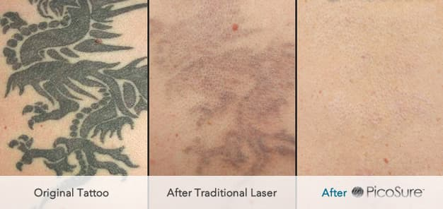 Picosure tattoo removal uk andrea catton laser clinic for How much to get a tattoo removed