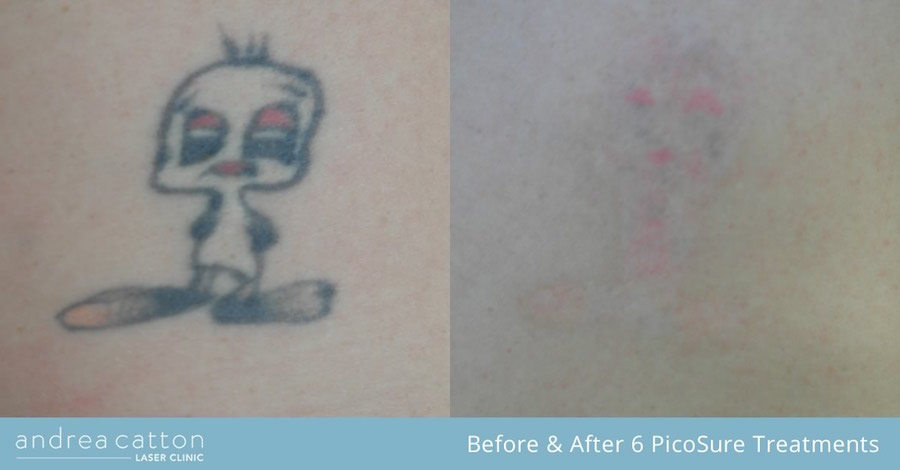 tweetie pie tattoo before and after 6 picosure treatments