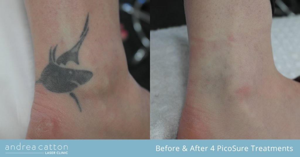 shark tattoo on ankle before and after 4 picosure treatments