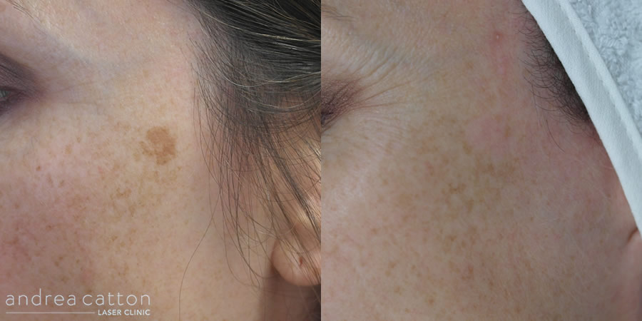 pigmentation on cheek before and after revlite