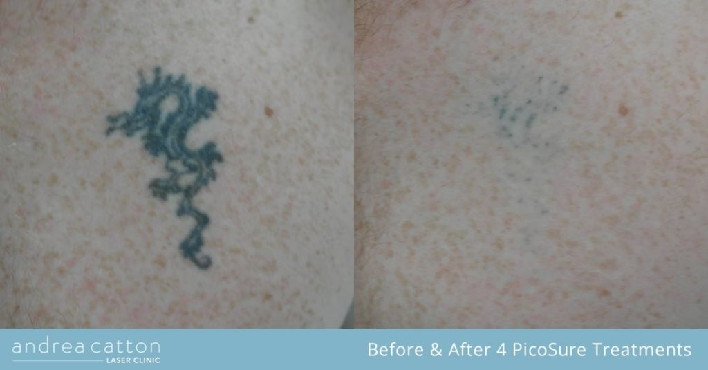 chest dragon tattoo before and after 4 picosure treatments