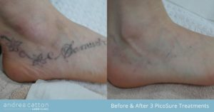 foot tattoo before and after 3 treatments