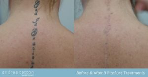 neck spine tattoo before and after 3 picosure treatments