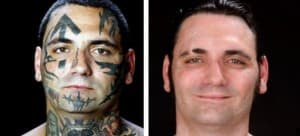 facial tattoo removed before and after