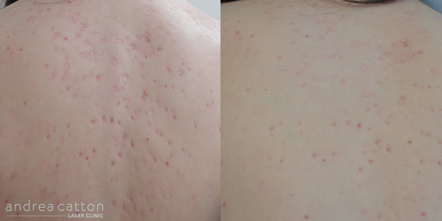 back acne scars before and after 2 treatments