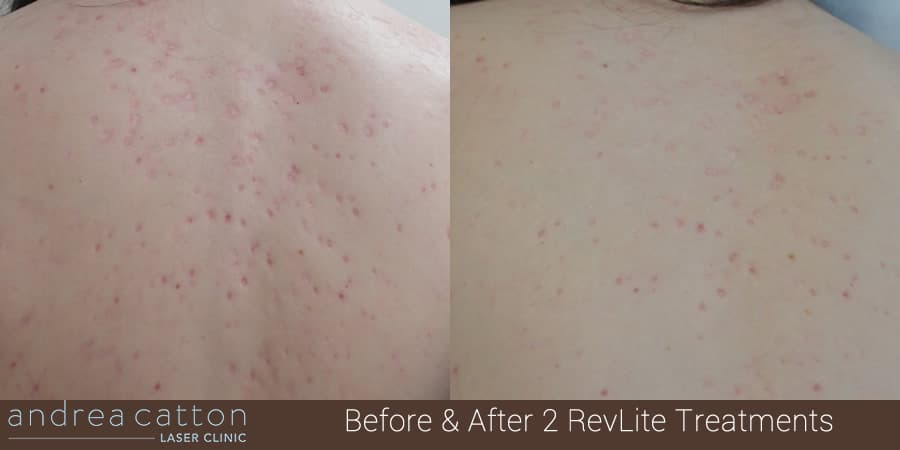 Faq How Does Laser Acne Scar Removal Actually Work Andrea