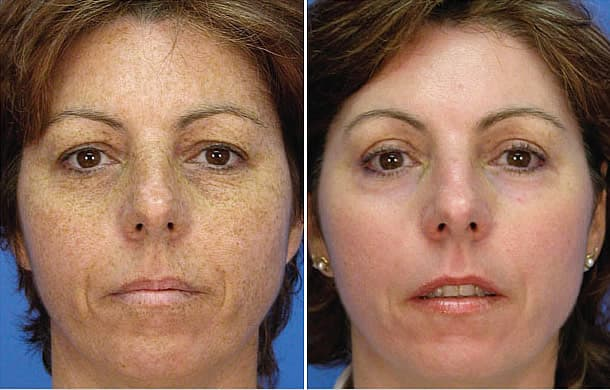before and after face freckle removal