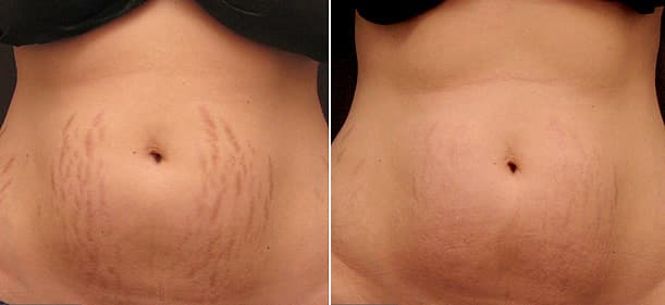 Laser Stretch Mark removal on back before and after
