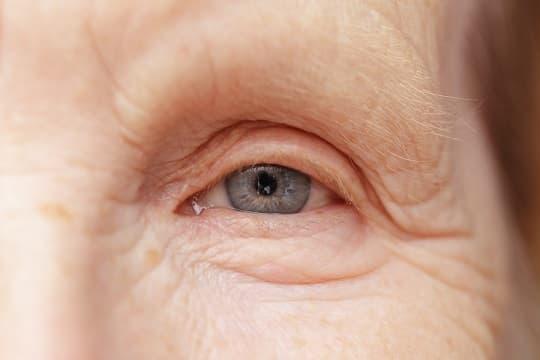 wrinkled eye