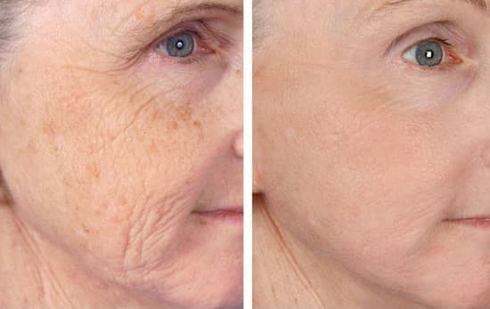 wrinkles on face before and after laser treatment