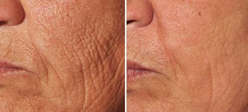 wrinkles on cheek before and after