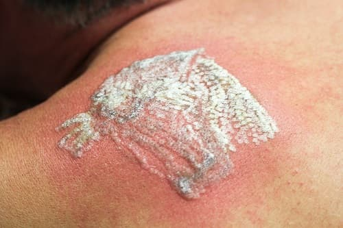 Faq What Is The White Frosting Caused By Laser Tattoo