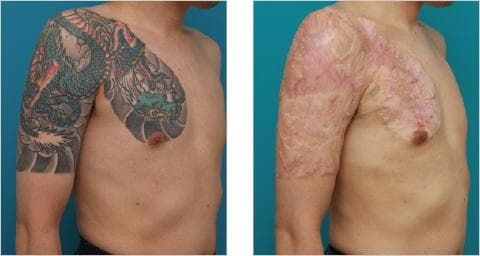 surgical excision tattoo removal permanent scarring