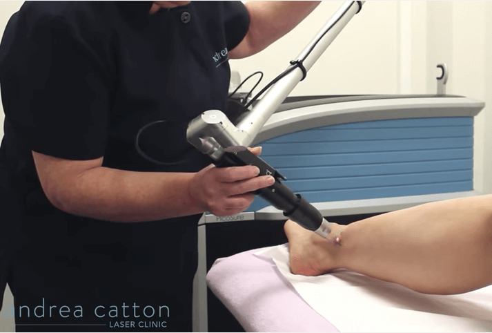 picosure laser in action on ankle tattoo