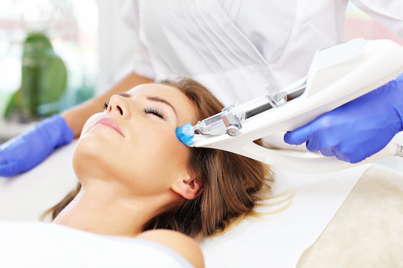 Mesotherapy For Pigmentation Amp Stretch Marks Andrea