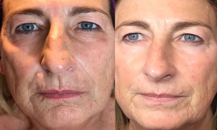 plasma lift before and after facial