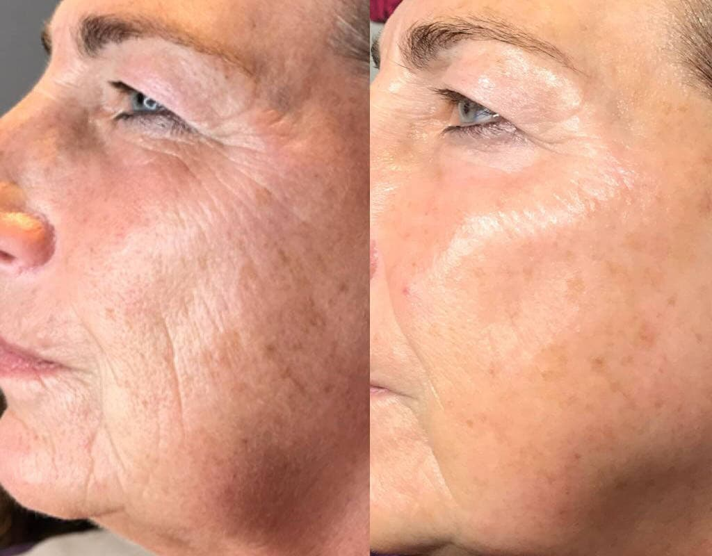 wrinkles before and after plasma lift treatment