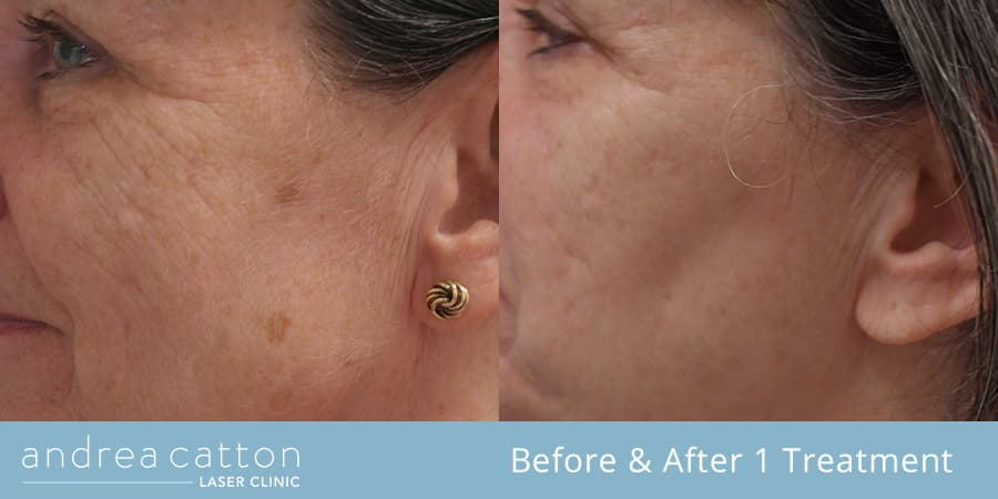 pigmentation on cheek before and after 1 treatment