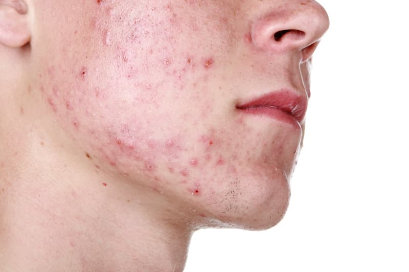 acne on cheek and chin