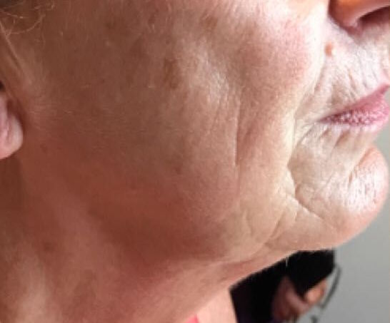 sagging jowl example woman chin