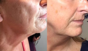 plasma lift before and after