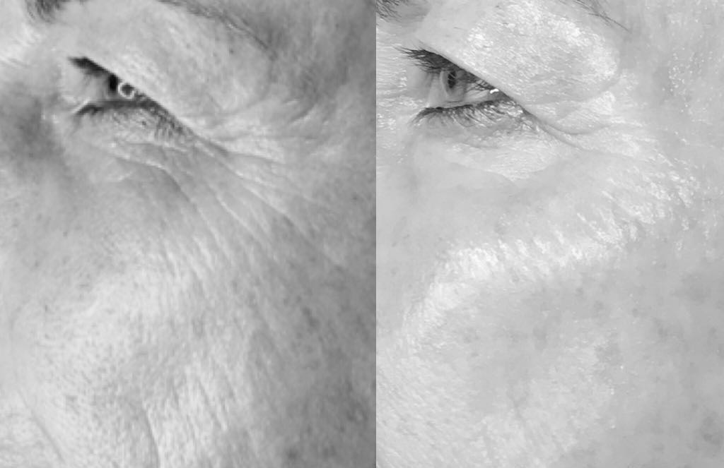 Plasma Lift eye area before and after